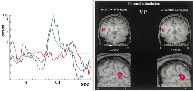 Single trial variability of auditory responses